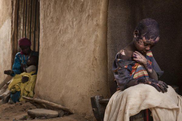 «Забытые горы Судана», Эдриен Оганесян (США) Семилетний Адам Абдель получил серьёзные ожоги после того, как рядом с его домом в Бургу (провинция Центральный Дарфур, Судан) разорвалась бомба