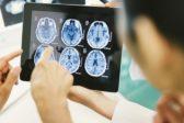 Благотворительный Фонд Константина Хабенского открыл сайт об опухолях мозга