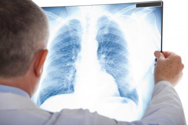 Почему не надо бояться рентгена