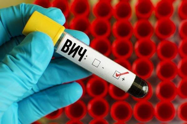 Роспотребнадзор заявил о нехватке финансирования для борьбы с ВИЧ