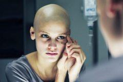 Как пережить химиотерапию (видео)