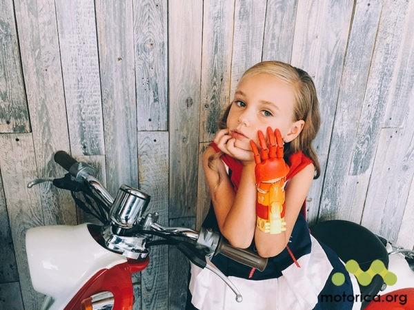 В России появятся инновационные протезы рук для детей