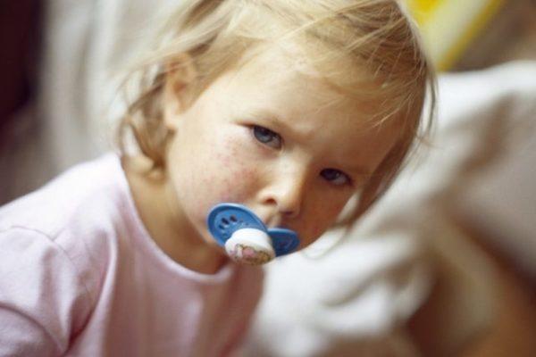 За две недели января на Украине заболели корью почти 1300 человек