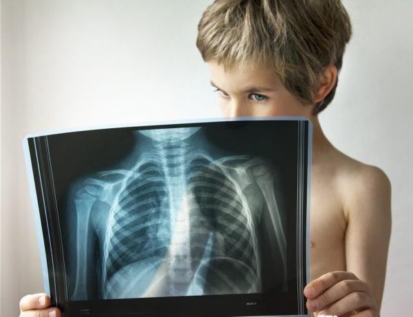 Туберкулез: 8 ответов врача тем, кто не хочет заболеть