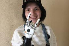 Жительница Серпухова, которой муж отрубил кисти рук, получила бионические протезы