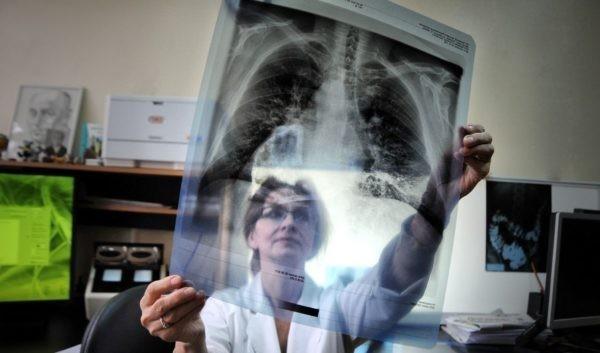 Если человек болел туберкулезом заразен ли он