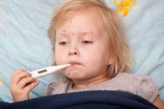 В России дети стали намного чаще болеть корью