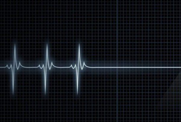 В Англии разрешили отключать пациентов от систем жизнеобеспечения без решения суда