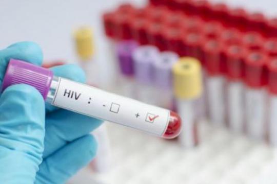 Количество новых инфицированных ВИЧ в Москве увеличилось на 20%