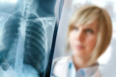 ВОЗ сообщила о снижении смертности от туберкулеза, но заболевание остается самым смертоносным в мире