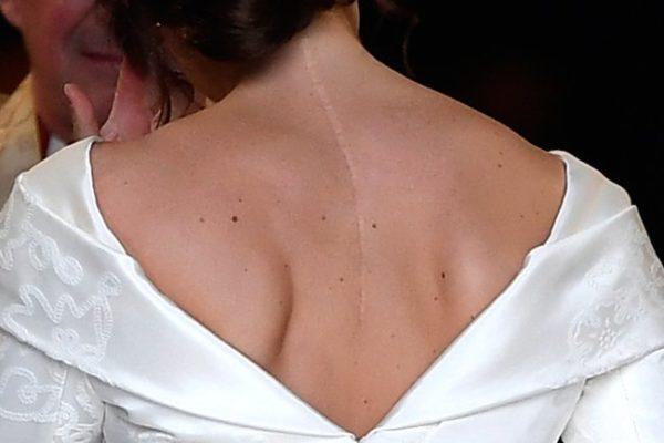 Британская принцесса поддержала подростков со сколиозом, надев свадебное платье, открывающее шрам от операции