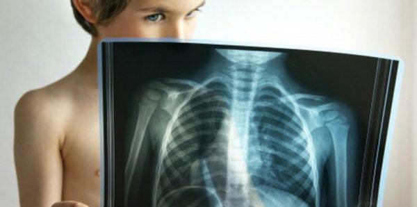 В Тульской области 12 школьников заболели пневмонией