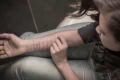 Мать подростка: «Шрамы на руках стали появляться постепенно. После побега их стало больше»