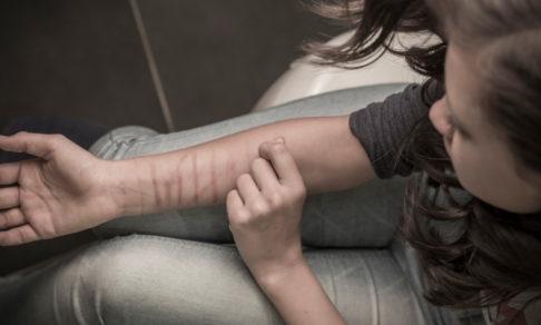 Мать подростка. «Шрамы на руках стали появляться постепенно. После побега их стало больше»