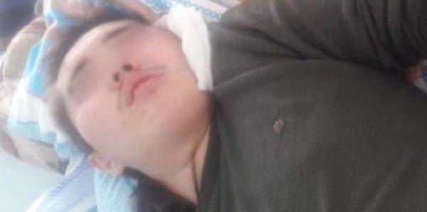 На Алтае дети избили подростка-инвалида на горке