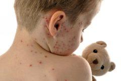 О случаях заболевания корью сообщили в семи регионах России