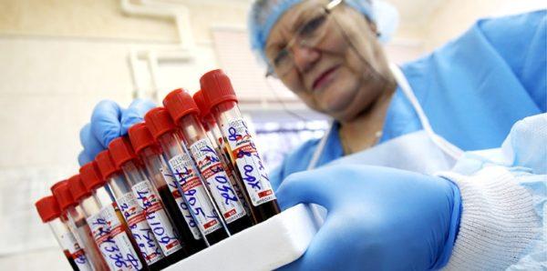 В России впервые за шесть лет снизилось число заразившихся ВИЧ