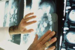 Заболеваемость раком в России выросла на 14% за 10 лет
