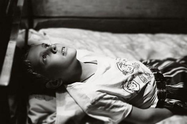 «Горб, косоглазие, истощение – но они же не жалуются на боль». Почему болезни детей из интернатов необратимо запущены