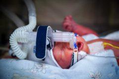 «Нужно ли было спасать?» Что будет, если отказаться от реанимации новорожденного, который не выживет