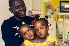«Любой выбор разобьет мне сердце». Отец сиамских близнецов должен решить, кто из них останется в живых