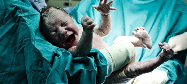 Может ли кесарево сечение быть причиной аутизма? Как нейронарушения связаны со способом появления ребенка на свет