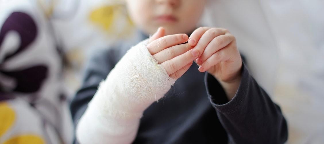 «Секунда — и ребенок падает на раскаленные угли». Врач ожогового отделения — о родительской беспечности и тяжелом лечении