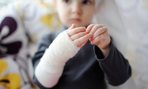 «Это такая же кожа, она не заразна». Врач ожогового отделения – о беспечности родителей, тяжелом лечении и новой внешности