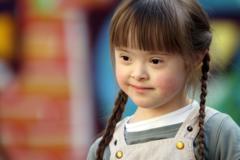 В России за пять лет стало на треть больше людей с синдромом Дауна