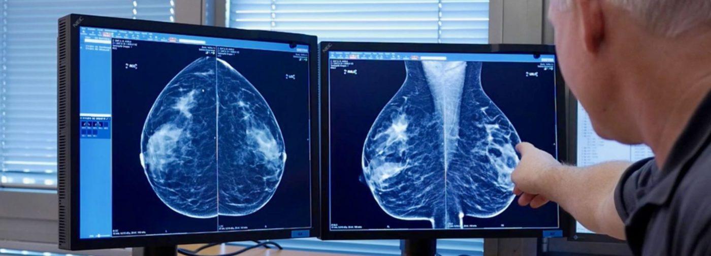 Рак, который вас никогда не убьет. Чем опасна гипердиагностика онкологии и какова цена за ненужный скрининг