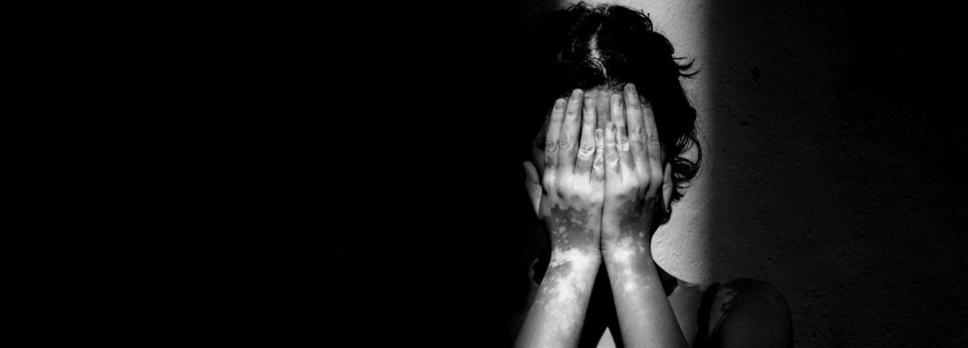 «А вы точно не заразны?» — спросил врач. Как живут люди с редкими болезнями кожи