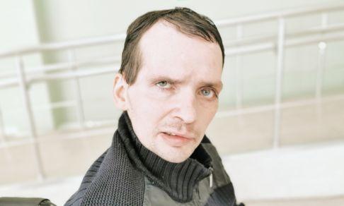 Мозг был залит кровью. После инсульта актер Алексей Янин не может ходить и говорить