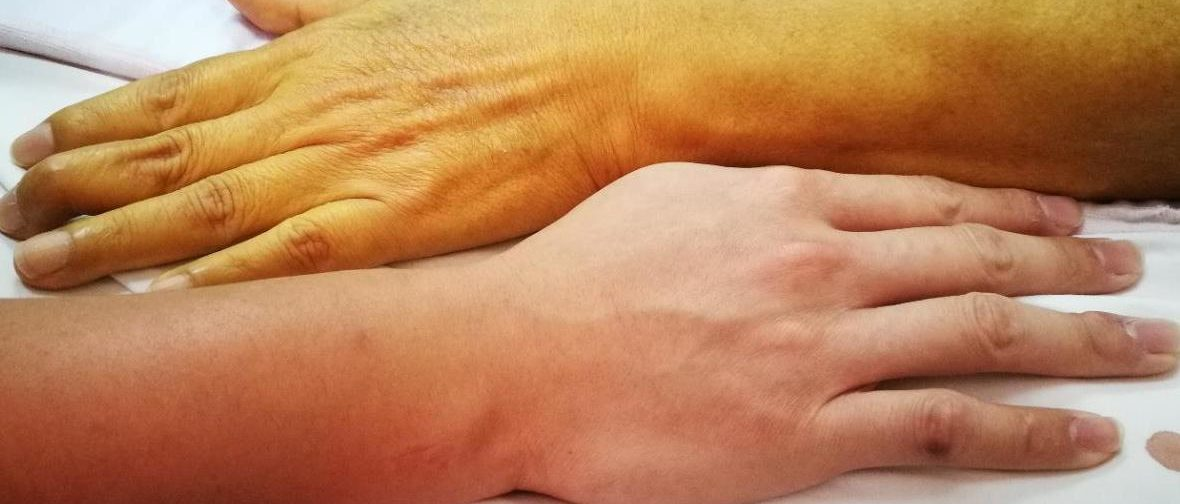 «Никакой он не убийца!» Почему мифы о гепатите продолжают жить, а лечение получают лишь 5% больных
