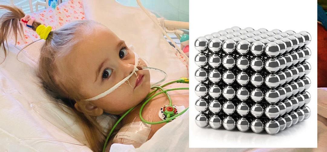 «Эти шарики могут убить вашего ребенка». Двухлетней Саше врачи удалили кишечник из-за магнитной игрушки