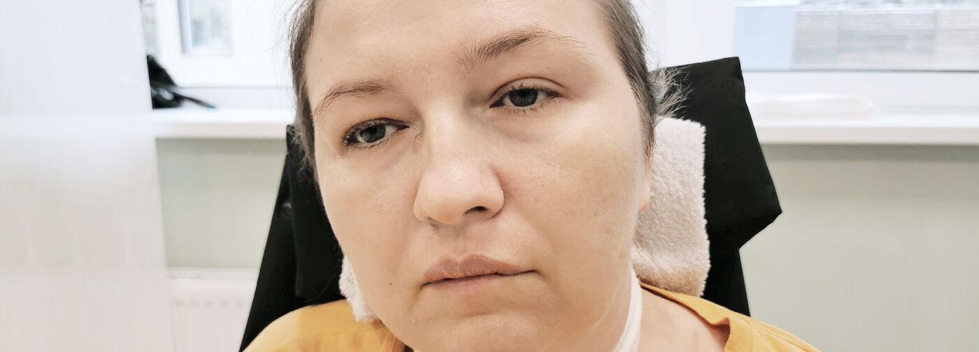 От укола антибиотика Юлия впала в кому