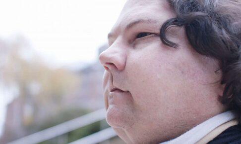 «Мне пересадили чужое лицо». Как Джо выжил после автокатастрофы и ожогов 80% тела
