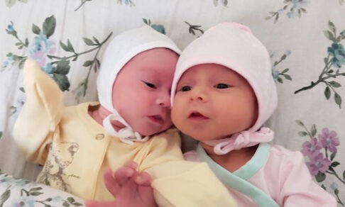 Двойняшек разлучили с рождения: одна здорова, у другой 7 операций