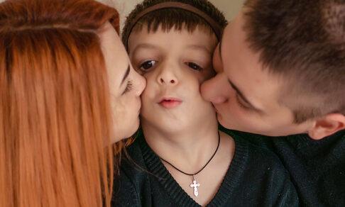 Редкий синдром Тричера Коллинза. Когда Лена родила ребенка, врачи не хотели ей его показывать